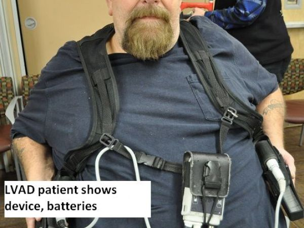 Young Heart Transplant Recipient Celebrates Long Life Holidays At Kaiser Permanente Gilroy