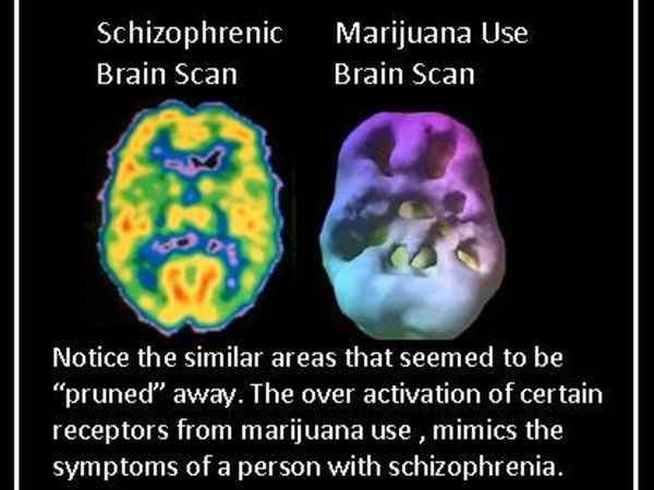 The Link Between Schizophrenia And Marijuana  Cannabis Use