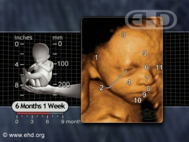 """Vermont Bill Would Legalize Abortion Up to Birth, Unborn Baby """"Shall Not Have Independent Rights Under Law"""""""
