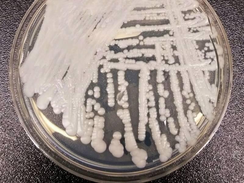Deadly Superbug Candida Auris Reaches California   Patch