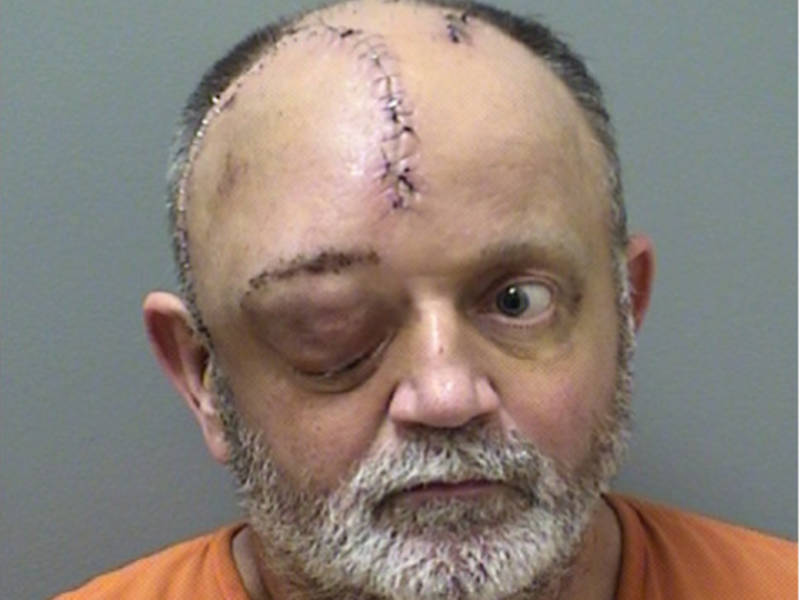 Husband charged with attempted murder in wife's shooting | canton.