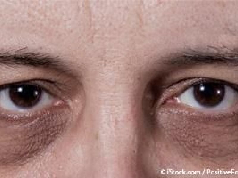 What Causes Dark Circles Under the Eyes? | Ramsey, NJ Patch