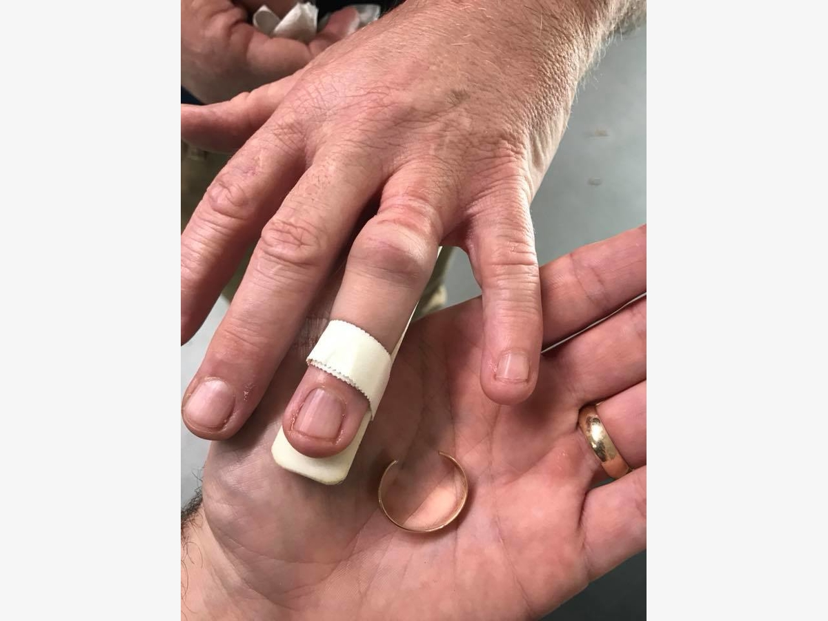 Trumbull Firefighters Remove Wedding Ring | Trumbull, CT Patch