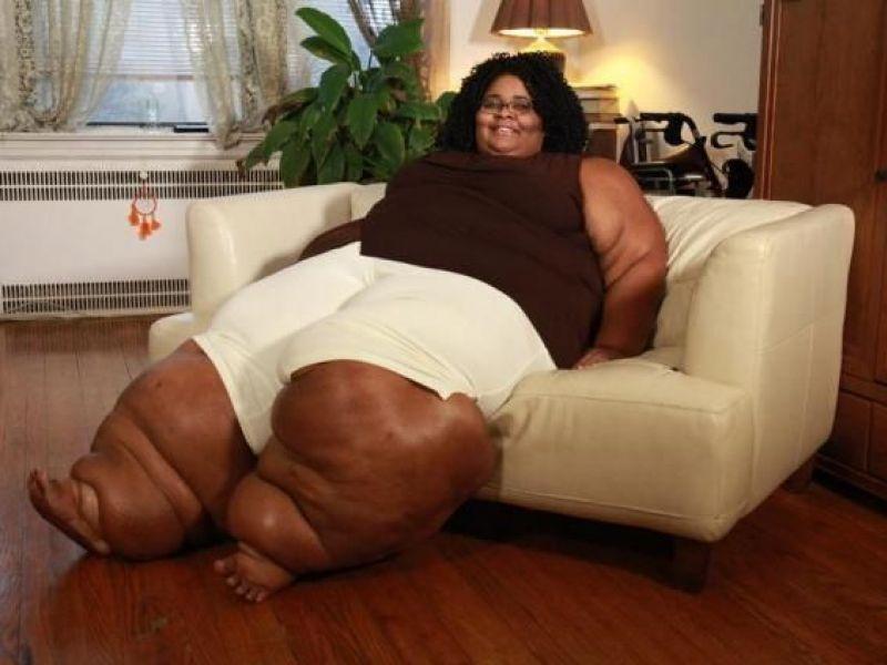 Fat Women Legs