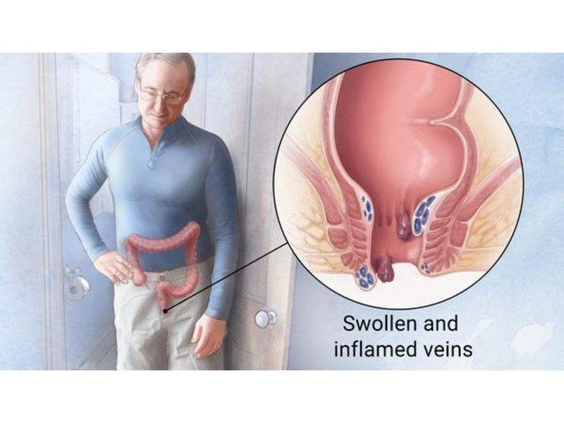 4 Signs Your Hemorrhoid Needs Medical Attention Beverly Hills Ca