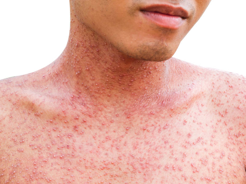 Possible Measles Exposure In St Louis Health Officials