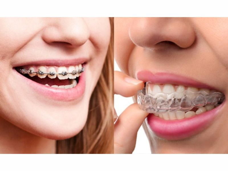 Braces vs. Invisalign: Which Teeth-Straightening Mechanism ...
