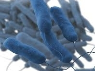 5 Deaths In NJ Legionnaires Disease Cluster: Patch PM